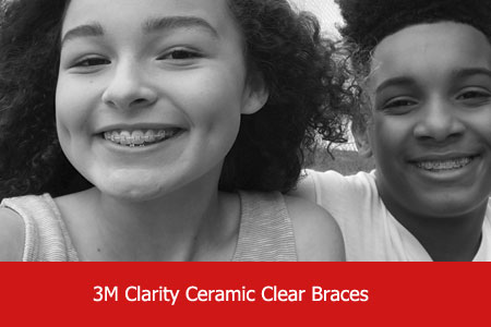 Active Smile Win New Smile 3M Clarity Braces for Teens 450x300 with text